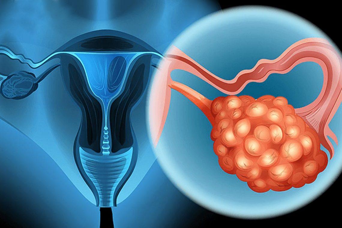 Torbiele na jajnikach – przyczyny i leczenie
